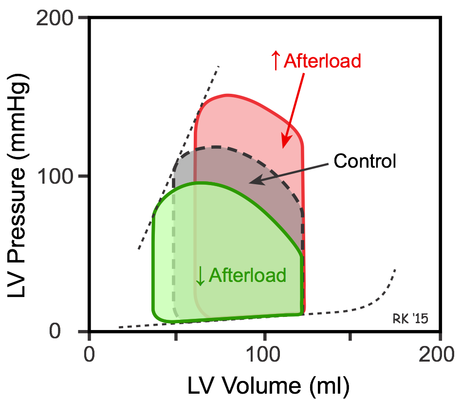 Afterload effects on ventricular pressure-volume loops