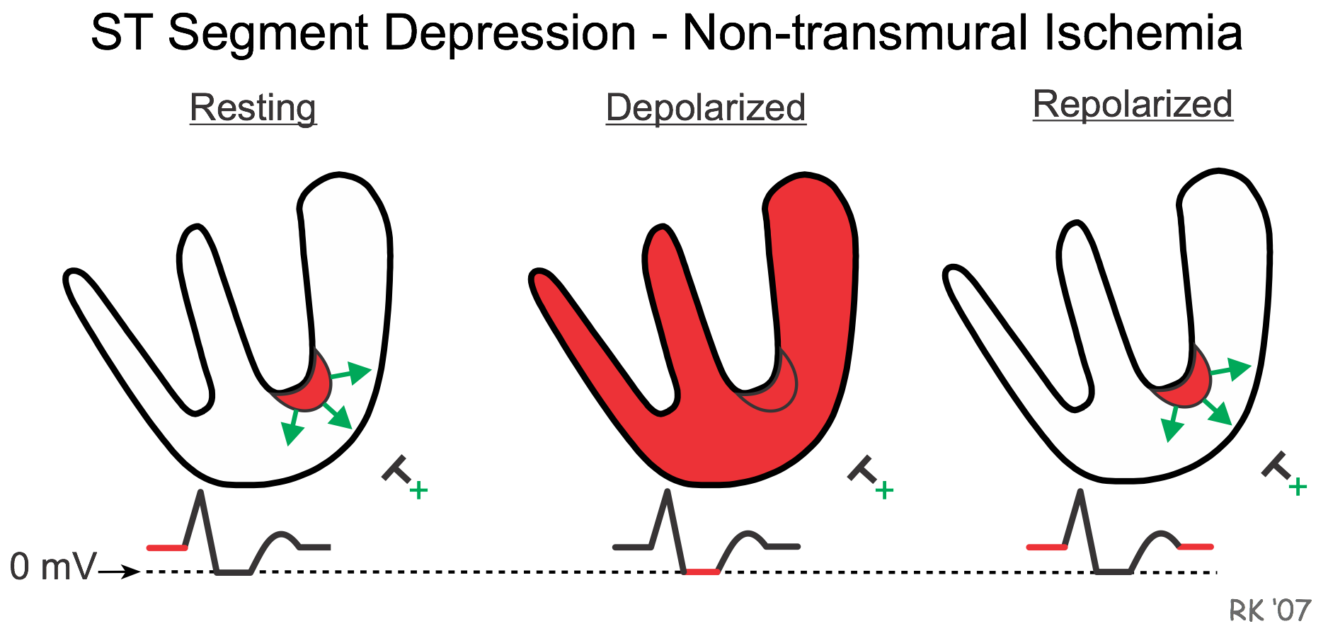CV Physiology | Electrophysiological Changes During Cardiac Ischemia