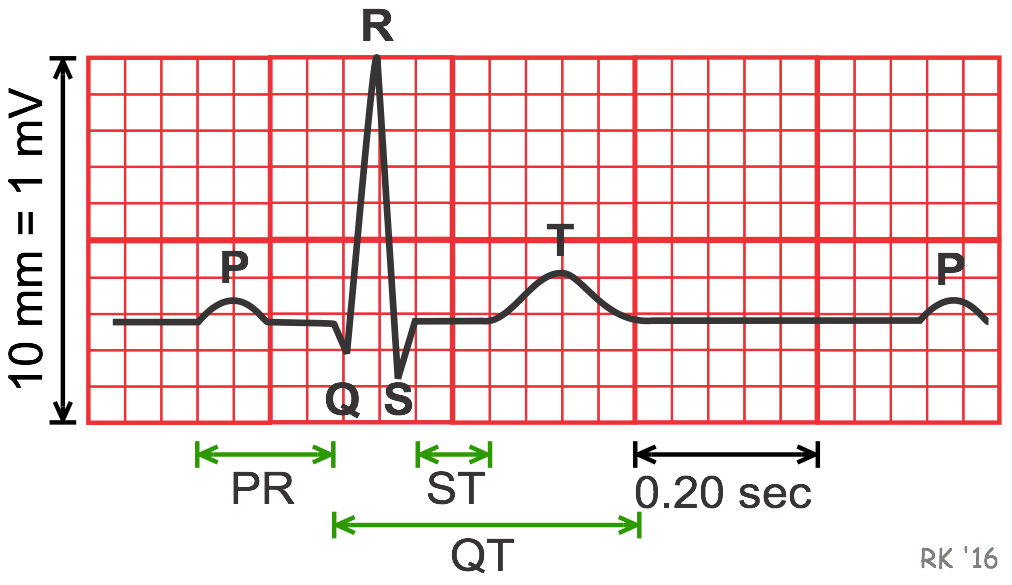 ECG trace with grid cv physiology electrocardiogram (ekg, ecg) ecg diagram at aneh.co