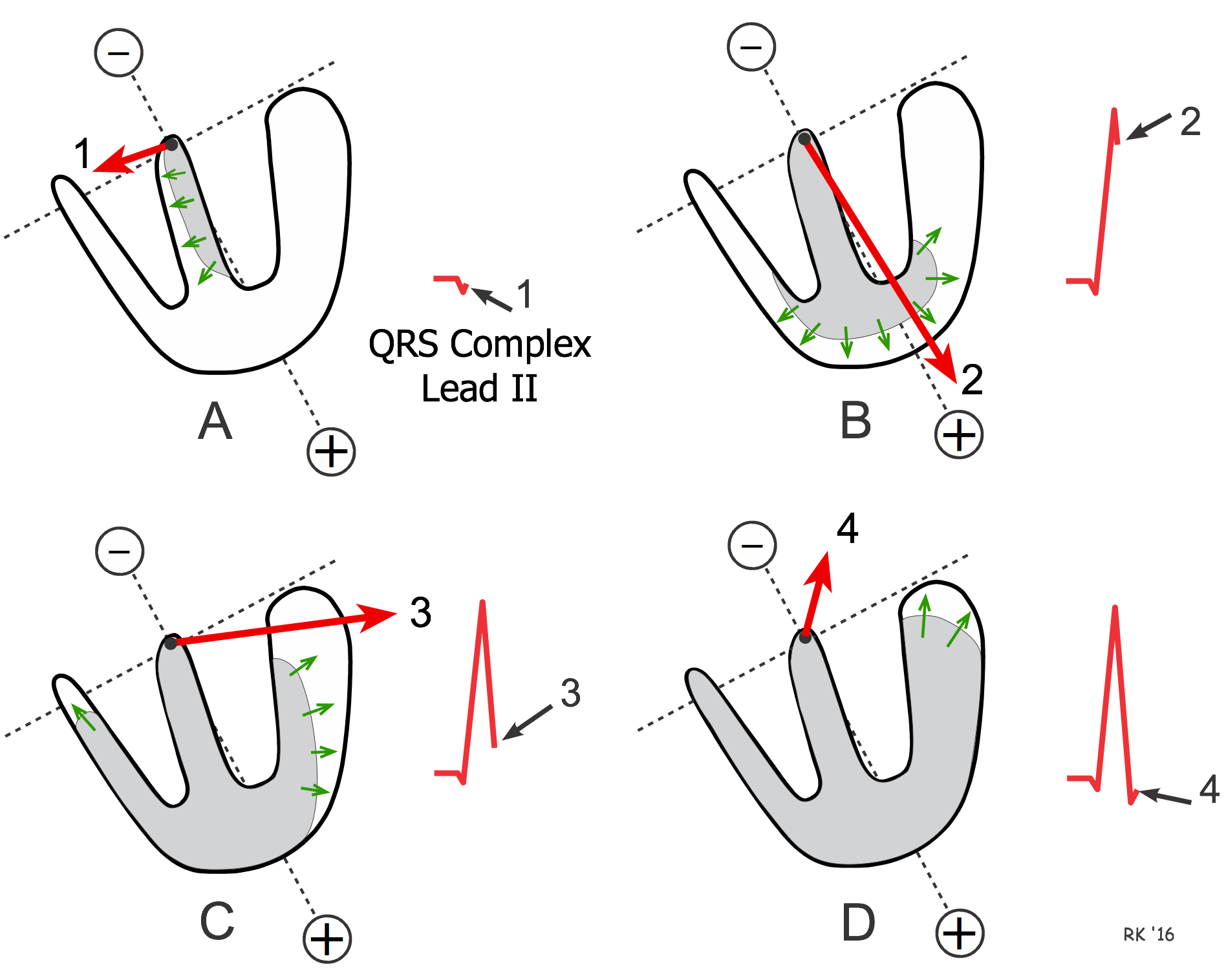 Cv Physiology Ventricular Depolarization And The Mean Electrical Axis