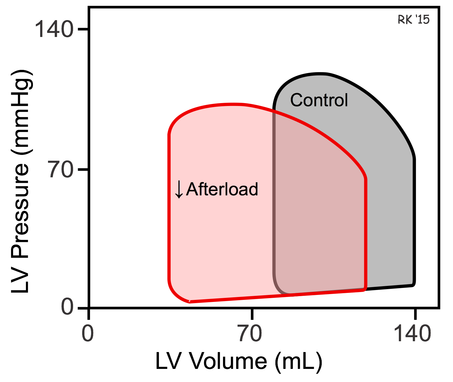 Afterload effects on ventricular pressure-volume loop